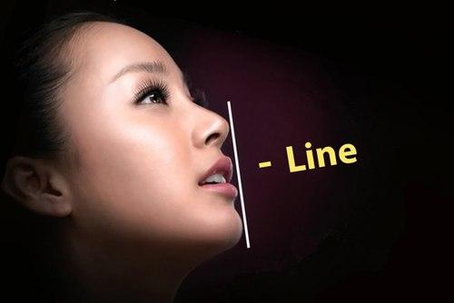 the nao la dang cam I-line