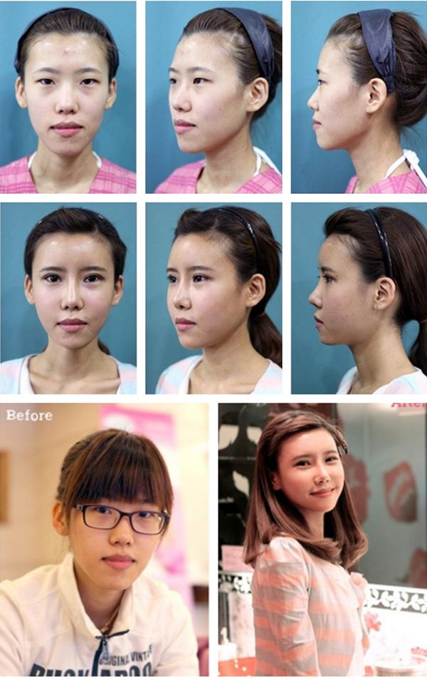 Những hình ảnh ngạc nhiên về thẩm mỹ độn cằm tại Hàn Quốc