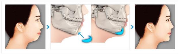 Sử dụng chất liệu cấy ghép để chỉnh sửa dáng cằm ngắn