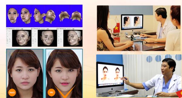 Cận cảnh quy trình độn cằm tự thân công nghệ Hàn Quốc 3