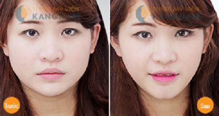 Cận cảnh quy trình độn cằm tự thân công nghệ Hàn Quốc 5