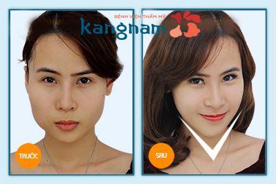 co-nen-don-cam-khong-tham-vien-kangnam3