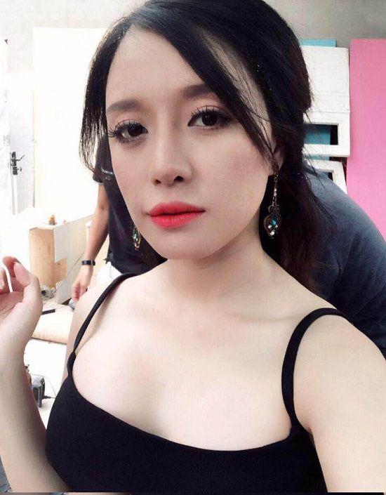 Châu Quỳnh có dáng cằm dài xinh sau phẫu thuật độn cằm tại Kangnam