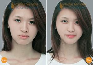 don-cam-o-tham-my-vien-kangnam-co-tot-khong21