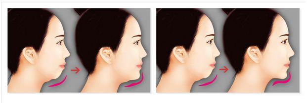 Độn cằm V line – Giải pháp khắc phục cằm ngắn, cằm lẹm