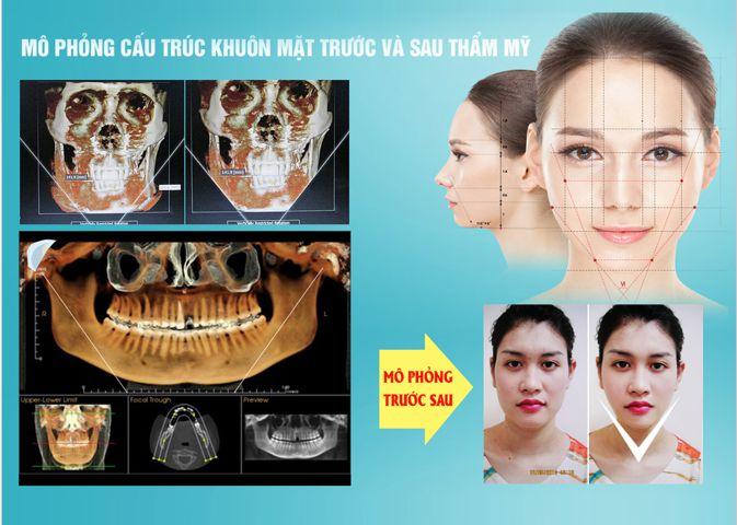 got-mat-vline-3d-cong-nghe-tham-khuon-mat-hang-dau-han-quoc11