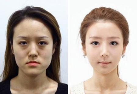 got-mat-vline-3d-cong-nghe-tham-khuon-mat-hang-dau-han-quoc13
