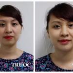 Trải nghiệm khách hàng độn cằm Vline tại Kangnam – Xem và cảm nhận