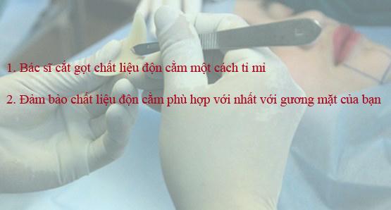 Lý do bạn nên phẫu thuật độn cằm tại TMV Kangnam? 4