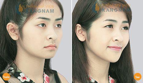 Lý do bạn nên phẫu thuật độn cằm tại TMV Kangnam? 7