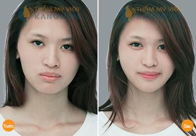 Lý do bạn nên phẫu thuật độn cằm tại TMV Kangnam? 8
