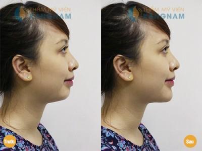 Lý do bạn nên phẫu thuật độn cằm tại TMV Kangnam? 10