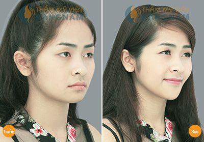 off-30-thang-tham-cn-han-quoc-cam-dep-nhu-y-khong-lo-chi-phi1