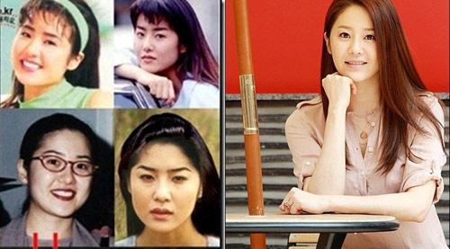 Điểm danh sao Hàn dính nghi án độn cằm V-line 3