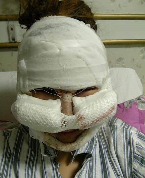 Phẫu thuật độn cằm tiềm ẩn nguy cơ nhiễm trùng, tai biến.