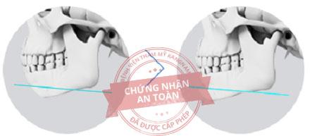 Độn cằm tự thân CN 3D tạo dáng cằm I-line đẹp chuẩn 8