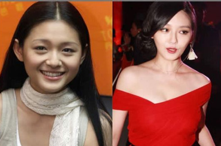 Sự khác biệt trước và sau độn cằm V-line của người đẹp Châu Á 6