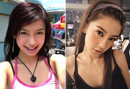 Sự khác biệt trước và sau độn cằm V-line của người đẹp Châu Á 4