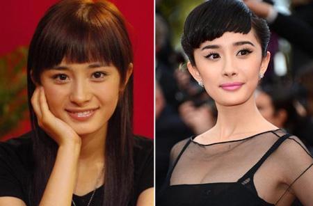 Sự khác biệt trước và sau độn cằm V-line của người đẹp Châu Á 3