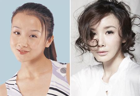 Sự khác biệt trước và sau độn cằm V-line của người đẹp Châu Á 2