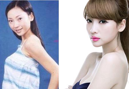 Sự khác biệt trước và sau độn cằm V-line của người đẹp Châu Á