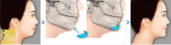 Sửa cằm ngắn và lẹm bằng cách nào hiệu quả nhất?