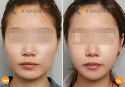 Sở hữu khuôn mặt trái xoan nhờ phẫu thuật độn cằm Hàn Quốc