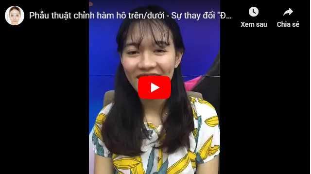 Video cách khắc phục miệng hô tại Kangnam